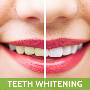 Sunset Teeth Whitening