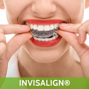 Invisalign in Sunset