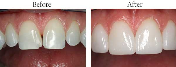 Kendale Lakes Before and After Dental Implants
